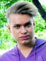 Бывший участник «Дома-2» Гоген Солнцев сделал неудачную пластику губ